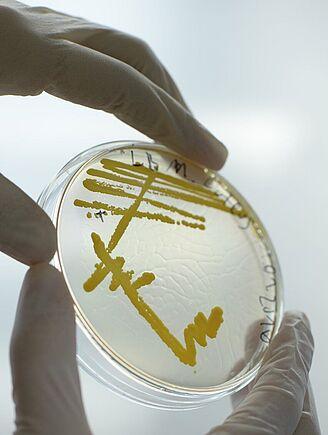 Agarplatte Mikrobiologie